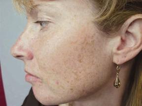 cum să eliminați petele de pigment pe față
