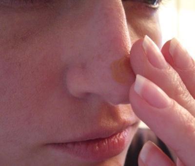cum să eliminați petele de pigment pe față acasă