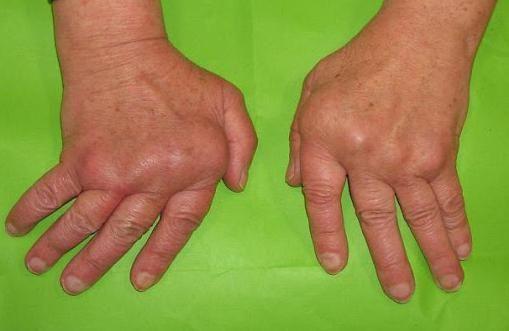 boli autoimune ale articulațiilor