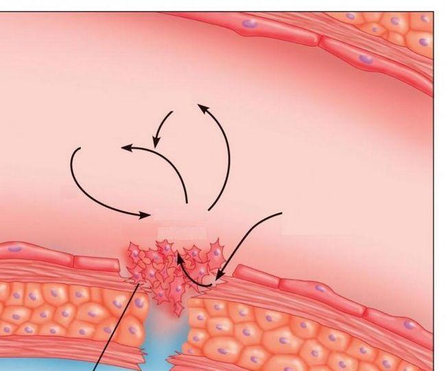 Durata de viață a trombocitelor este