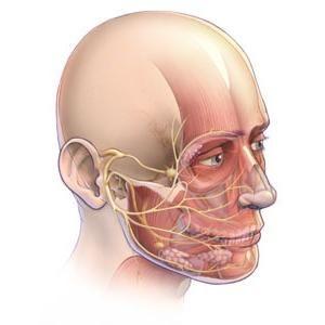 nevrită a nervului facial