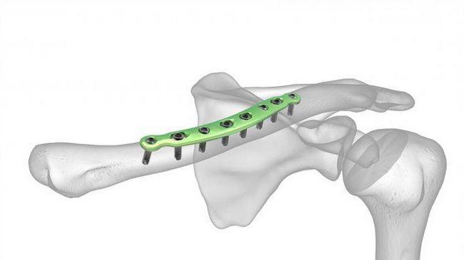 o claviculă ce este această parte a corpului și unde este