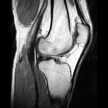 mgr articulației genunchiului