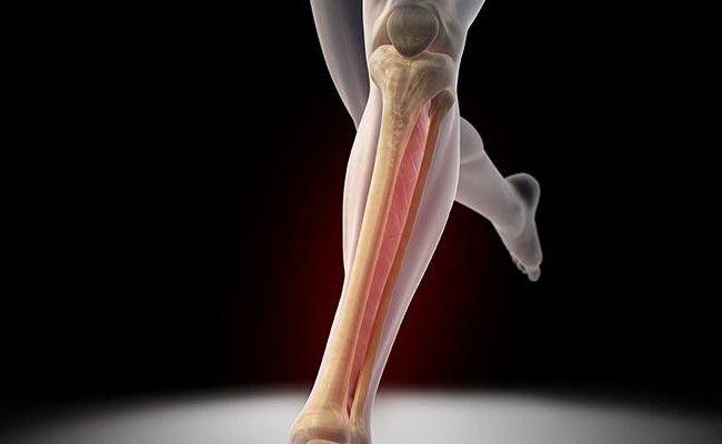 fractura oaselor inferioare ale picioarelor