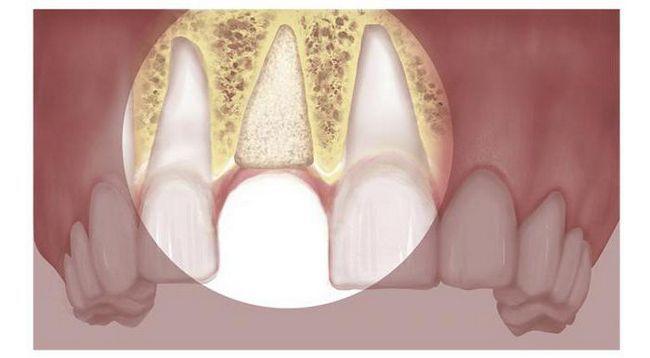 Materiale plastice osoase pentru revizii de implanturi dentare