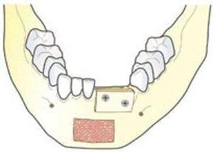 Chirurgie plastica osoasa pentru implantarea dintilor