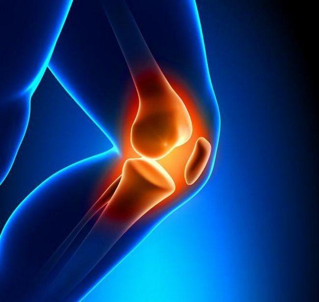 крестообразные связки коленного сустава лечение