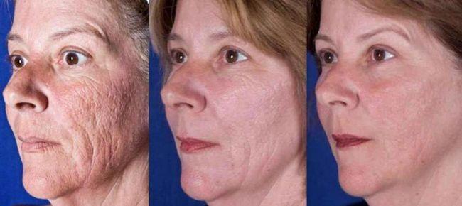 Laserul de lustruire a feței: indicații și contraindicații, îngrijire după procedură, plusuri și minusuri, recenzii