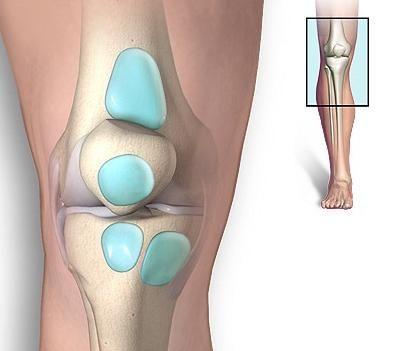 Tratamentul bursitei articulației genunchiului: revenim la ușurință la mers