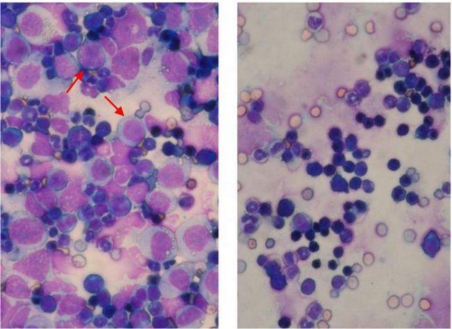 Prognoze leucemice acute de viață