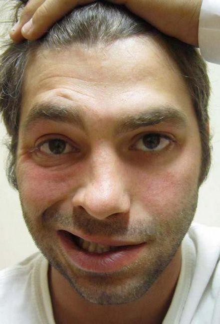 facial nervos anatomie simptome de deteriorare