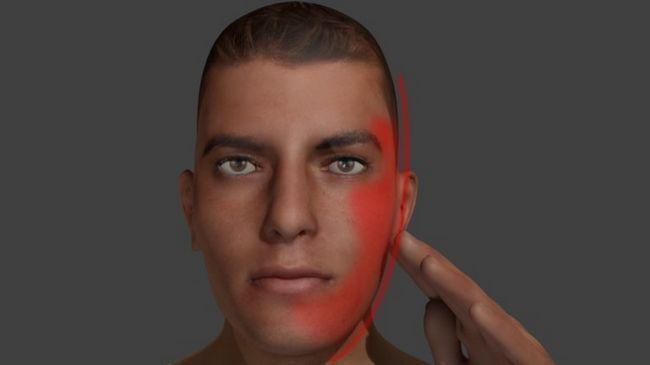 tratamentul simptomelor inflamației nervului facial