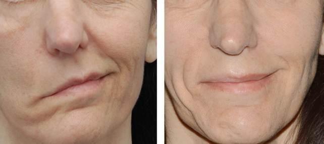 inflamația nervului facial trigeminal