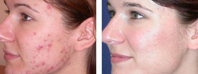 unguent pentru acnee și acnee pe față
