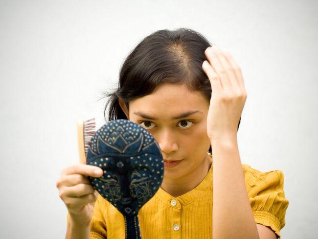 tratamentul alopeciei la femei
