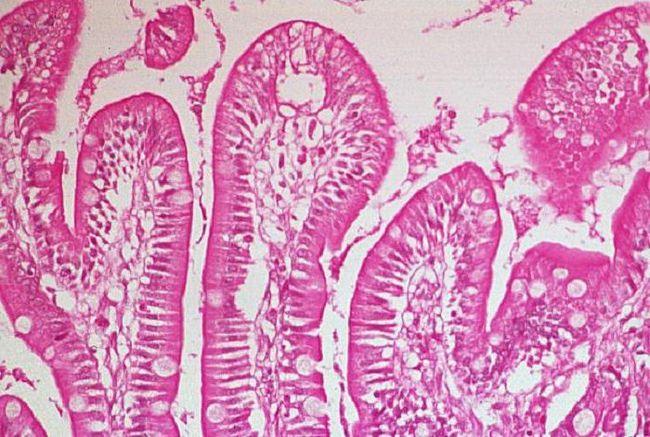diagnosticul de sindrom de malabsorbție