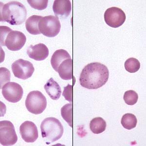mcv test de sânge