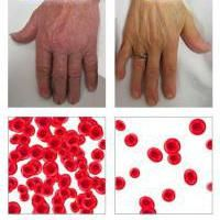 teste de sânge mcv