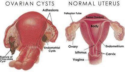pot rămâne gravidă cu un chist din ovarul stâng