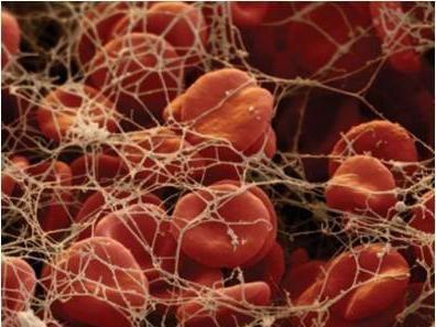 mpv în testul de sânge - normă