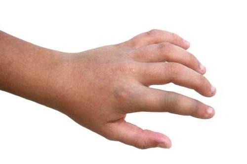 brațul fracturilor