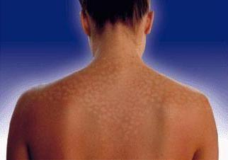 pete albe pe tratamentul pielii