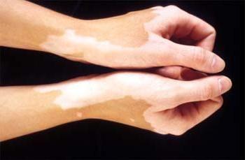 pete albe pe fotografia pielii
