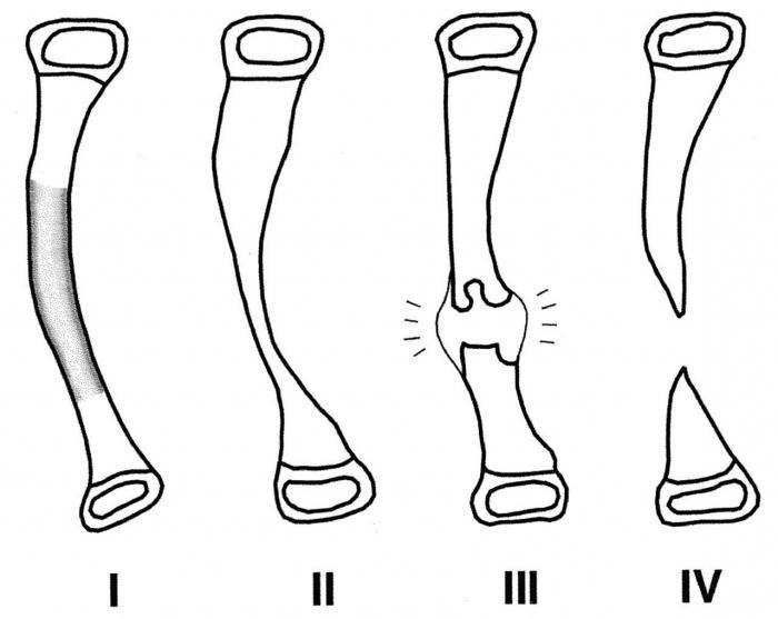 articulație falsă a piciorului inferior