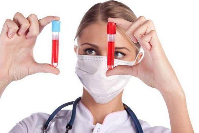 dacă este posibilă analiza generală sau comună a unui sânge dintr-o venă