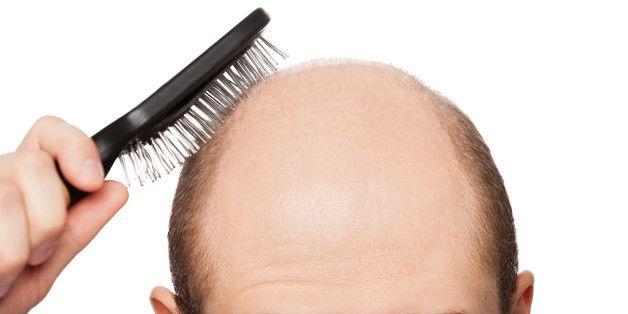 Părul cade în bărbați