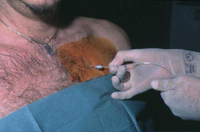 tipuri pneumotorax de îngrijire acută