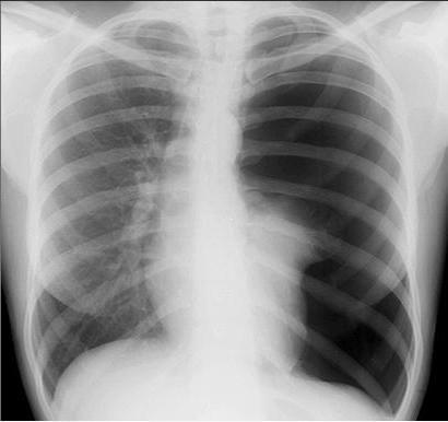 pneumothorax tipurile de fiziologie