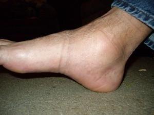umflarea piciorului în gleznă