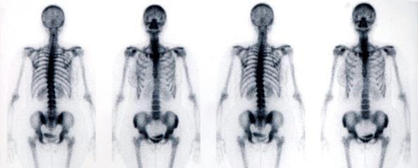 scheletul corpului