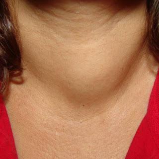 simptomele cancerului tiroidian
