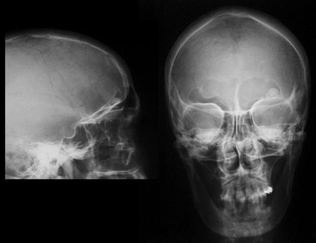 osteom osteoid
