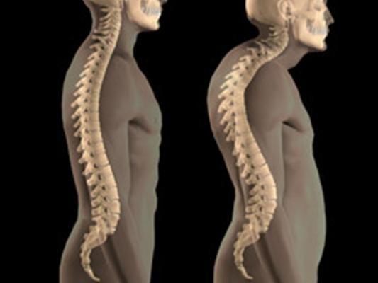 остеопороз что это