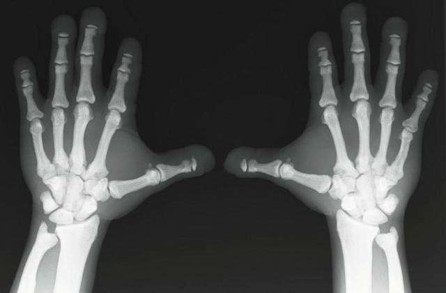 osteoscleroza ce este?