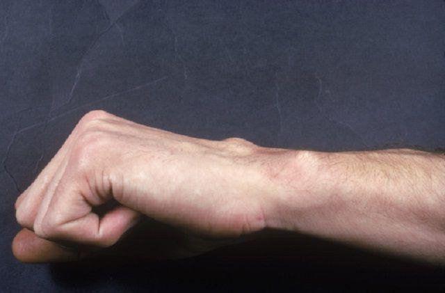 osteoscleroza suprafețelor articulare