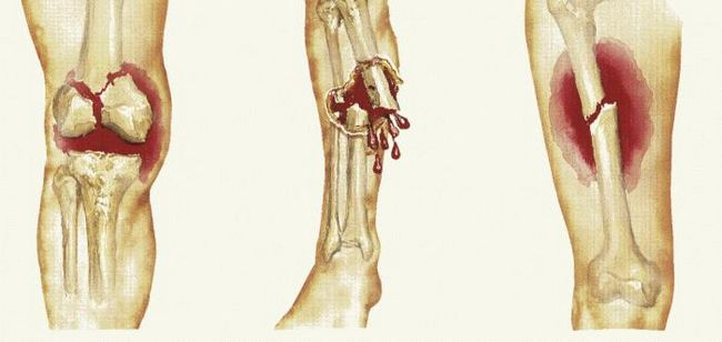 fracturi deschise