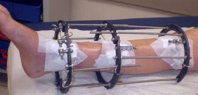 consecințele fracturilor