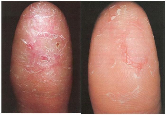 de ce ți se rupe degetele