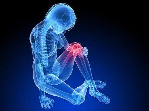 artroza patellofemorală