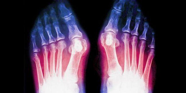 fractura 5 reabilitare osoasă metatarsală