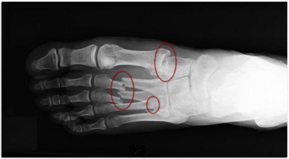 fracția închisă a osului metatarsal al piciorului