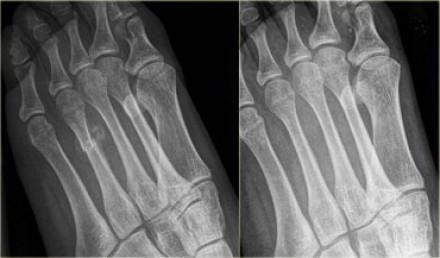 fractura osului metatarsal de bază 5 al piciorului