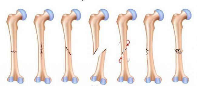 fractura de humerus