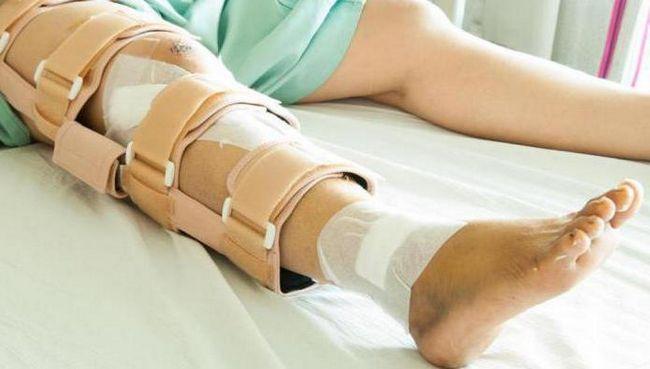 Fractura genunchiului