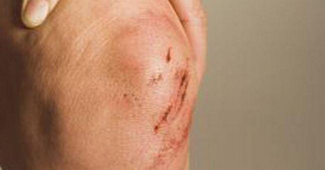 Fractura simptomelor genunchiului