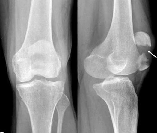 Fractura de caliciu a articulației genunchiului